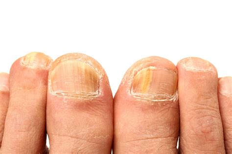 Top 10 Natural Home Remedies For Removing Yellow Nails