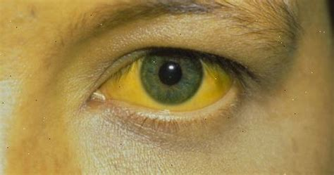 Jaundice Definition - What Is Jaundice   Health And Beauty